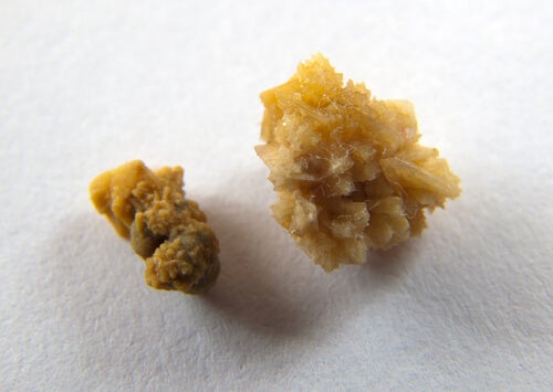 Culoarea urinei în caz de pietre la rinichi