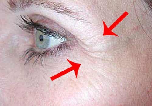 Laba-gâștii: riduri ce apar în colțurile ochilor
