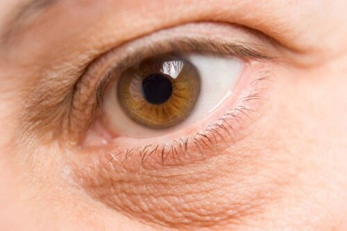 Pungile de sub ochi apar din diverse cauze