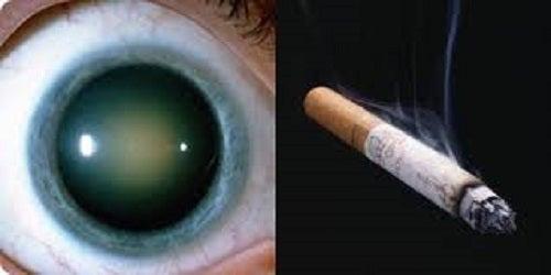 Nevoia de remedii naturiste pentru cataractă pentru fumători
