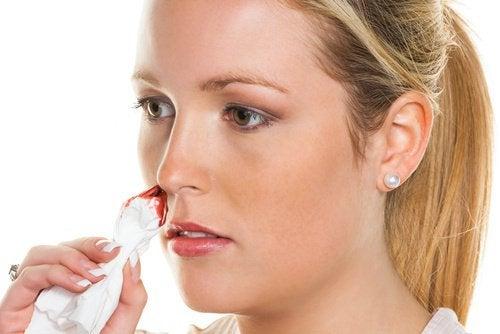 Sângerările nazale pot fi foarte supărătoare