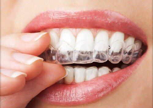 Scrâșnitul din dinți îți poate deteriora dantura