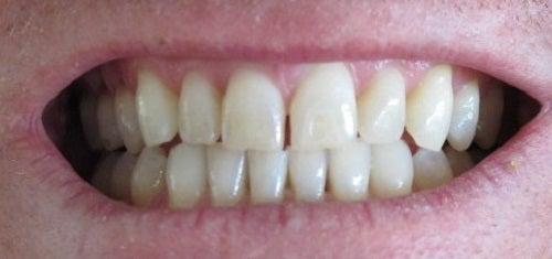 Scrâșnitul din dinți este un obicei care îți poate afecta sănătatea