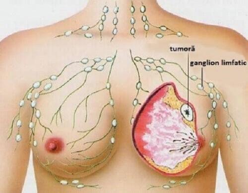 5 tipuri comune de cancer la femei