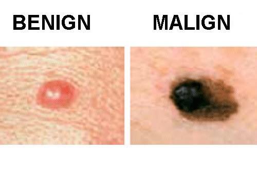 Tipuri comune de cancer precum cel de piele
