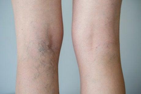 tratamentul venelor varicoase de terapie manuală