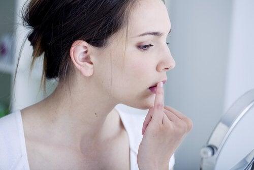 Cauzele reapariției herpesului oral și virusul responsabil