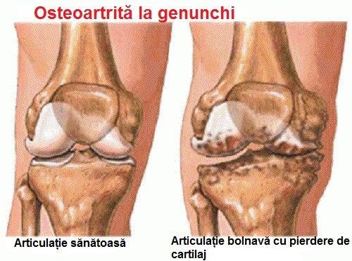 Durerile articulare pot fi localizate la genunchi