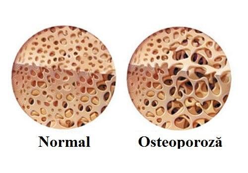 Durerile de oase pot fi cauzate de osteoporoză