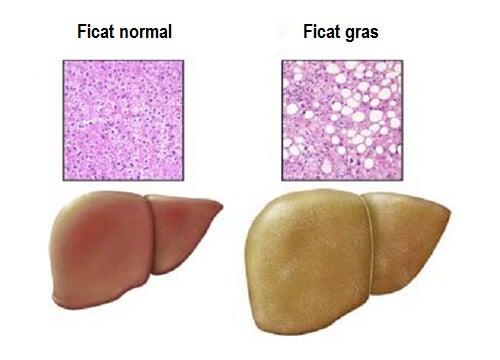 Ficatul gras și cauze ale acestuia