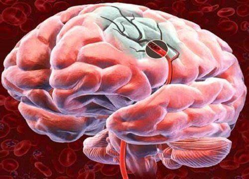 Fluxul sanguin cerebral aprovizionează creierul cu nutrienți esențiali