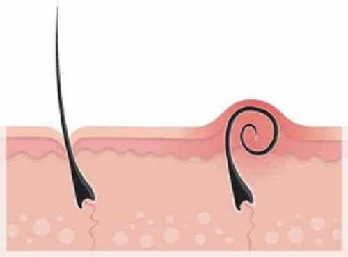 Scapă de părul crescut sub piele
