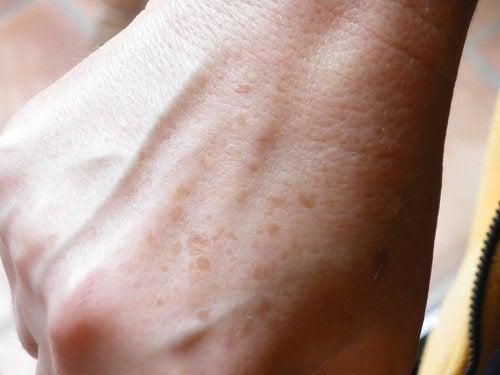 Apelează la remedii naturale pentru pete și puncte negre