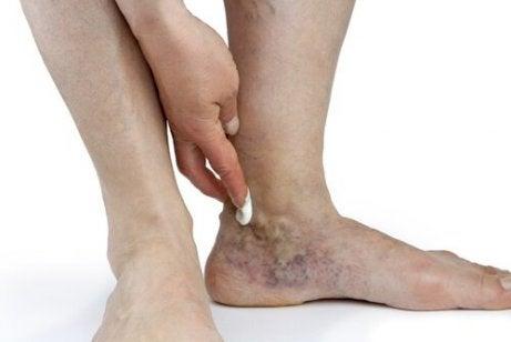ce cauzează retenția de apă la genunchi și glezne