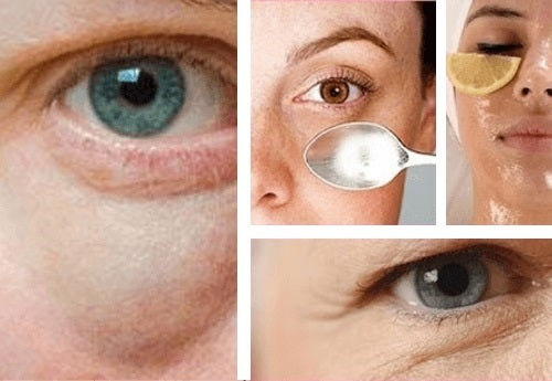 Cum să elimini pungile din jurul ochilor