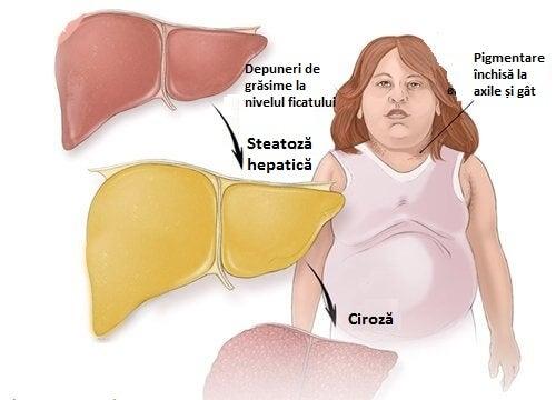 Trebuie să tratăm steatoza hepatică începând cu micul dejun