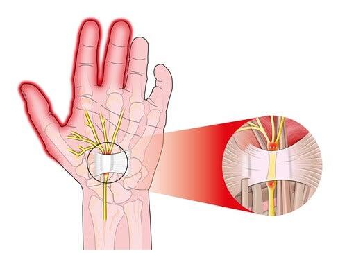 Sindromul de tunel carpian afectează mâinile