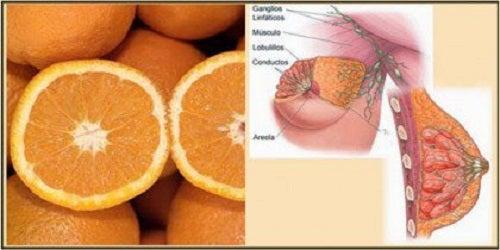 Portocalele intră în categoria de alimente sănătoase anticancerigene