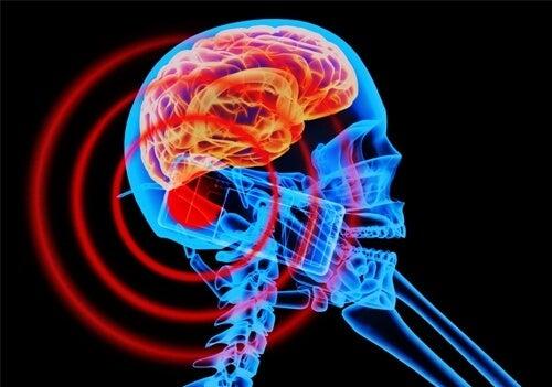 Câmpurile electromagnetice îți pot afecta creierul