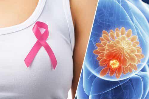 Simptome timpurii de cancer mamar