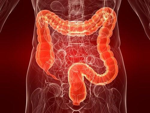 Colita ulcerativă afectează mulți oameni