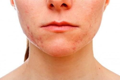 Loțiune facială cu oțet de mere care tratează acneea