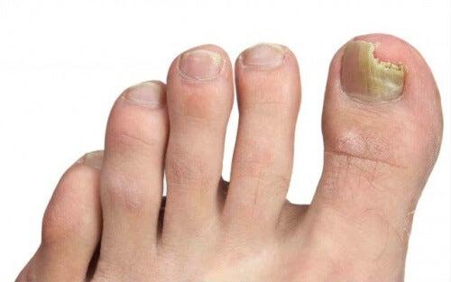 Onicomicoza picioarelor – cauze și prevenire