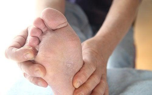Piciorul de atlet este o infecție fungică