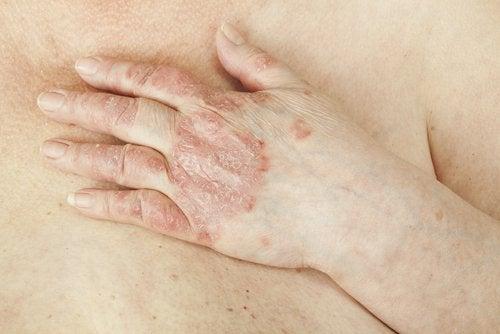 Psoriazisul este printre posibilele cauze ale mâncărimilor vaginale