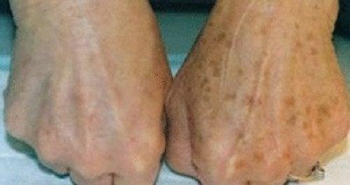 Remedii naturale pentru pistrui apăruți pe mâini