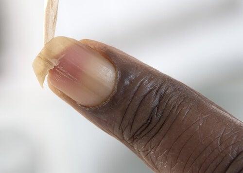 Cum să întărești unghiile fragile