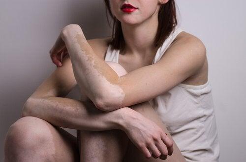 Vitiligo poate afecta brațele