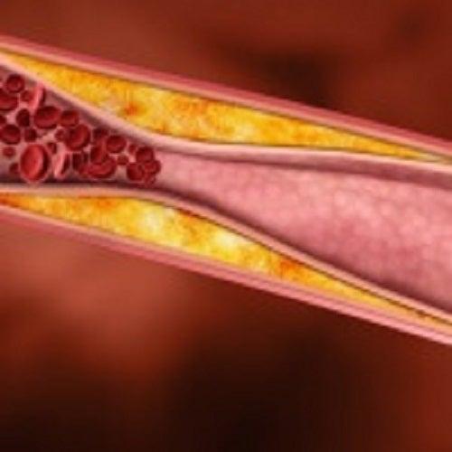 Există multe remedii pentru a reduce nivelul de colesterol din sânge