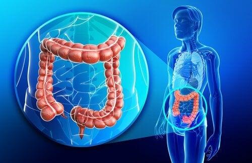 Colita ulcerativă afectează în principal colonul