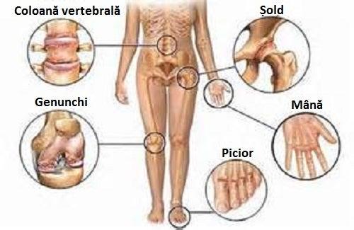 5 remedii naturale pentru durerile articulare