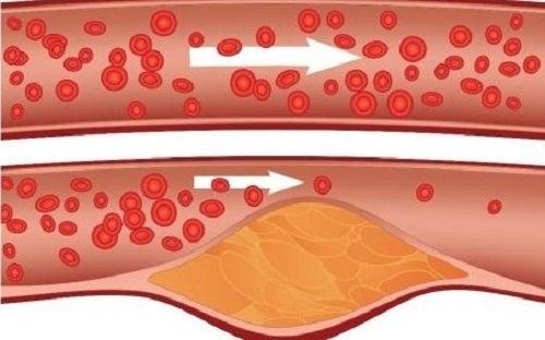 """Scorțișoara și mierea reduc nivelul de colesterol """"rău"""" din organism"""
