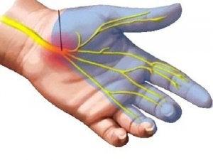 Artroza mainii (radio-carpiana)