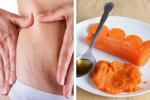 Tratament pentru vergeturi pe bază de morcovi