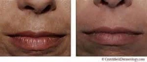 Utilizări ale apei oxigenate în îngrijirea pielii