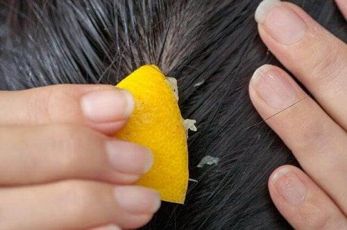 Căderea părului poate fi combătută cu zeamă de lămâie