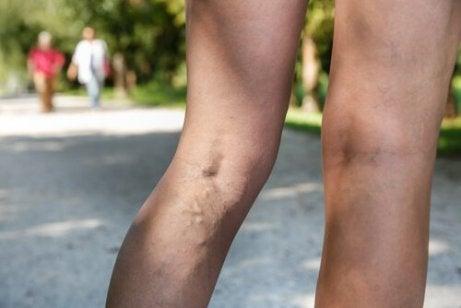 cum se reduc în mod natural venele de păianjen în picioare vindecare sindromul picioarelor neliniștite
