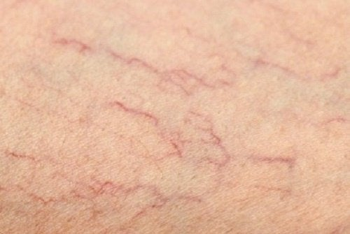 Cum să elimini varicele în mod natural