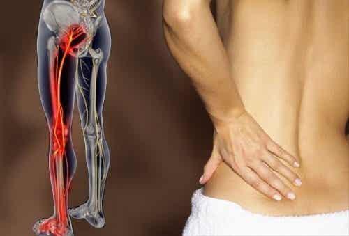 Durerea sciatică tratată cu 6 exerciții simple