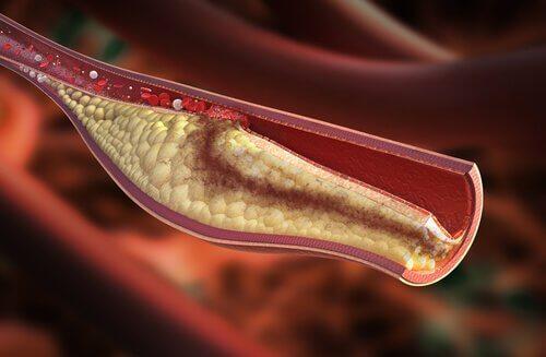 Colesterolul mărit este periculos pentru sănătate