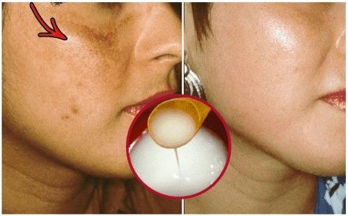 O cremă naturală care albește pielea
