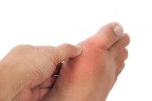 Guta - Boala metabolica pentru care exista tratament   Ayurmed