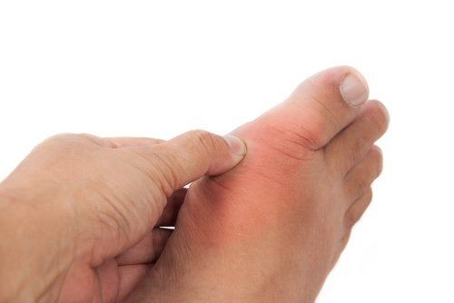 Guta produce inflamații la nivelul articulațiilor