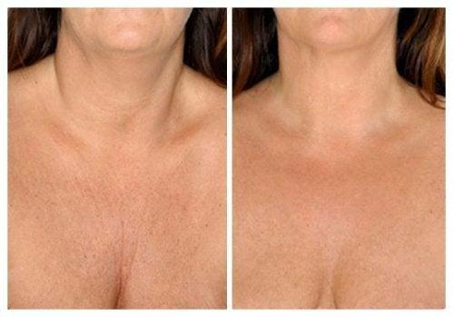 Întinerirea pielii gâtului cu remedii naturale
