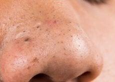 Punctele negre pot fi tratate cu diverse remedii naturiste