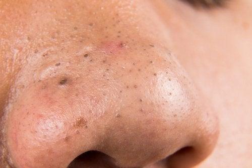 5 remedii naturiste împotriva punctelor negre